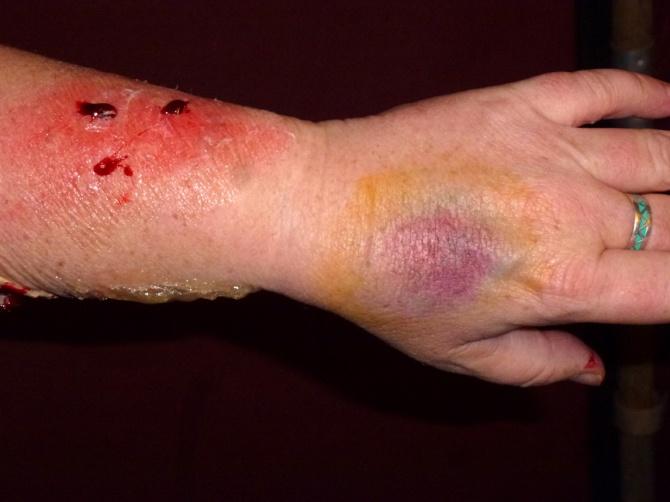 1st degree burns and bruises...